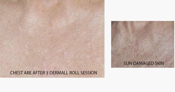 Derma Roll Results