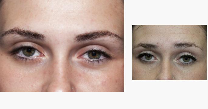 Permanent Eye Liner