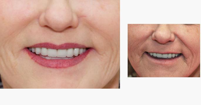 Permanent Lip Liner