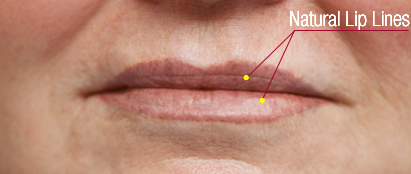 Natural Lip Lines