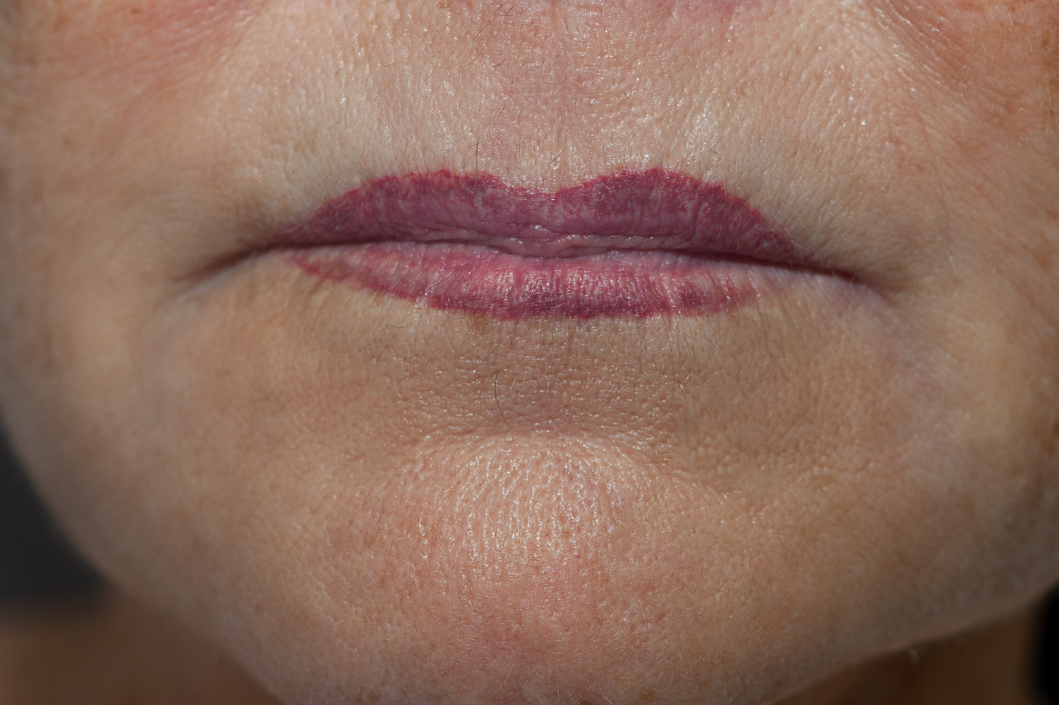 After: This is the first application of sun damaged lips. The follow up will even out the creases and color.